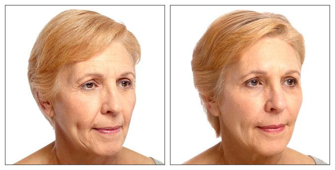 Dr Claudia Morley - Botox - Fillers - Dorset - Salisbury