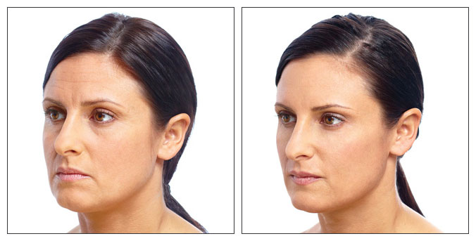Dr Claudia Morley - Botox - Fillers - Dorset - Salisbury - Ringwood